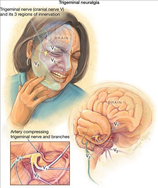 trigeminal neurolgia